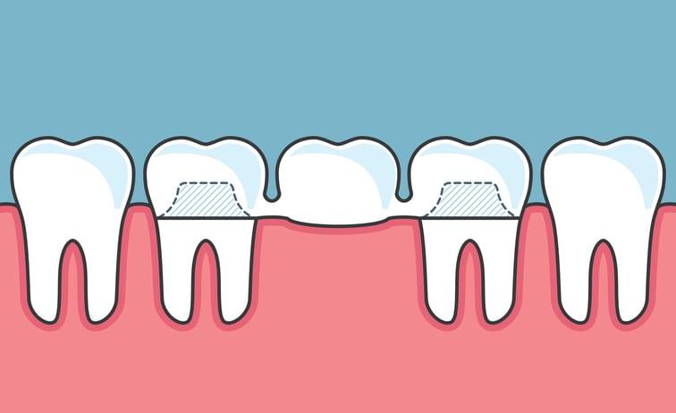 Dental Bridge Thornton