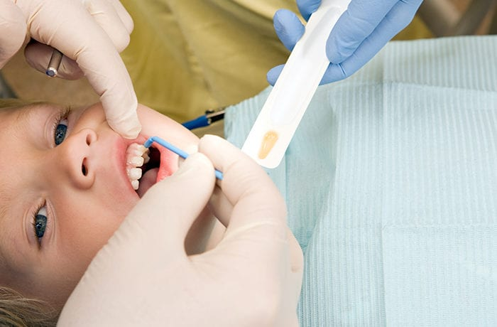 Fluoride Treatment Thornton