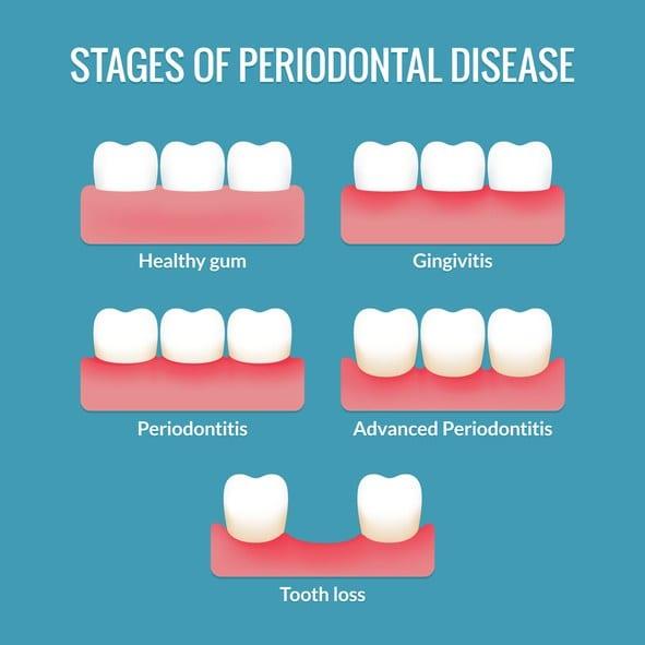 Periodontal Treatment in Thornton, CO
