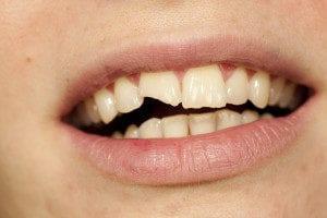 Teeth Bonding Thornton